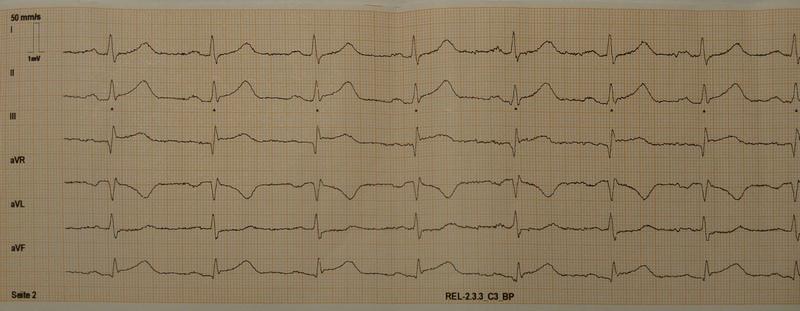 EKG I, II, III, aVR, aVL, aVF