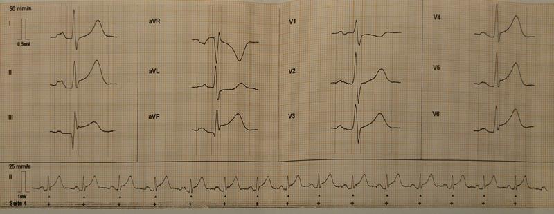 EKG 3